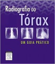 Radiografia Do Tórax Um Guia Prático